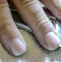 cuticles_marked